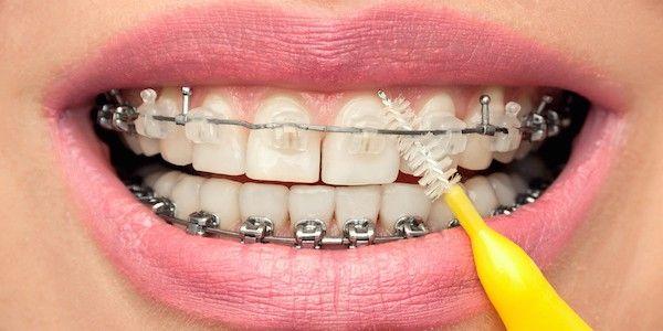 teeth cleaning torrance ca