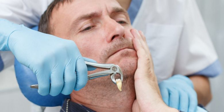 Escape From The Damages Caused By Wisdom Teeth With The Help Of Extraction Treatment